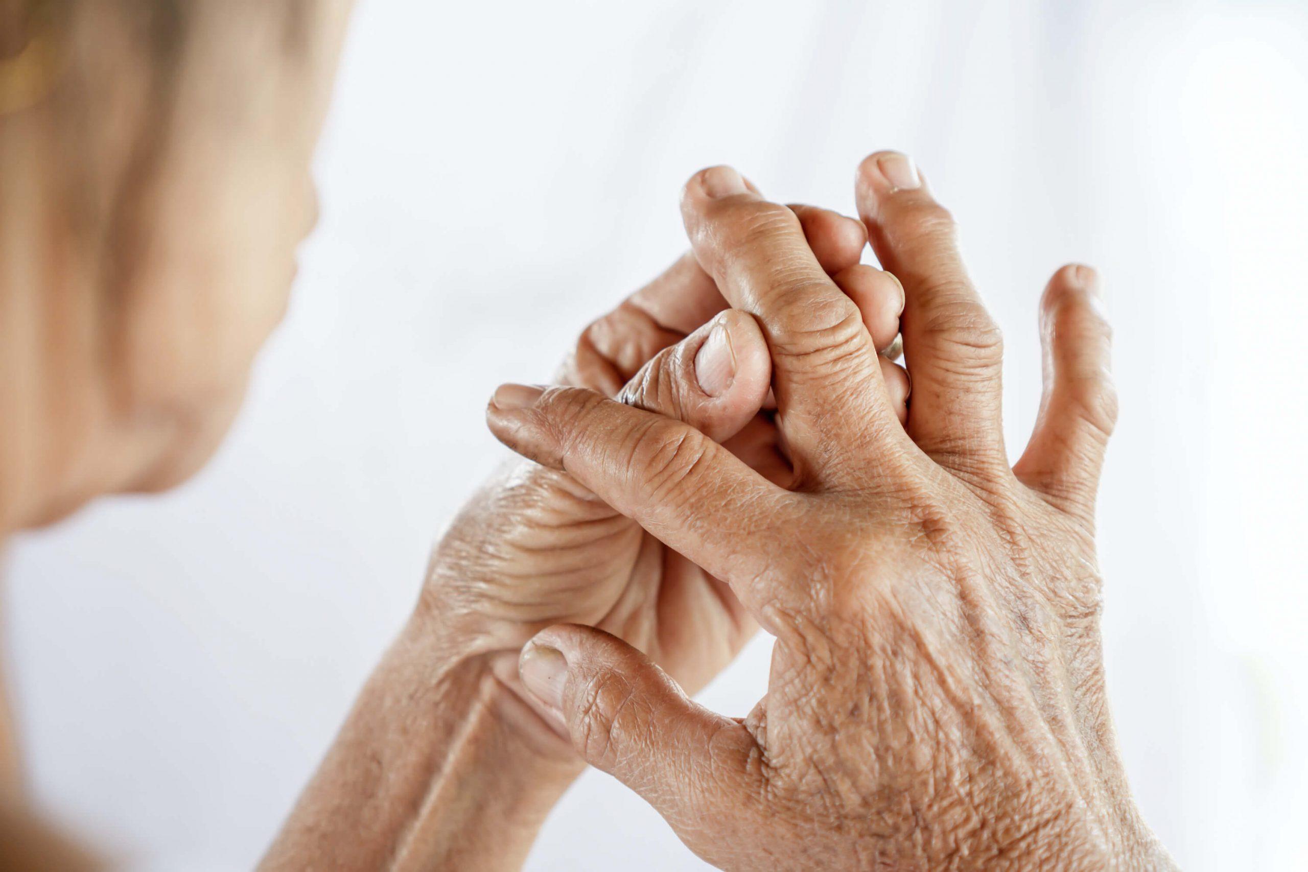 artritis manos